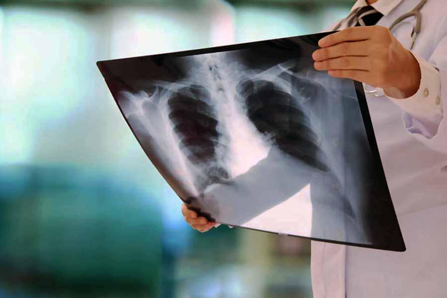 Bergen County NJ pulmonary care